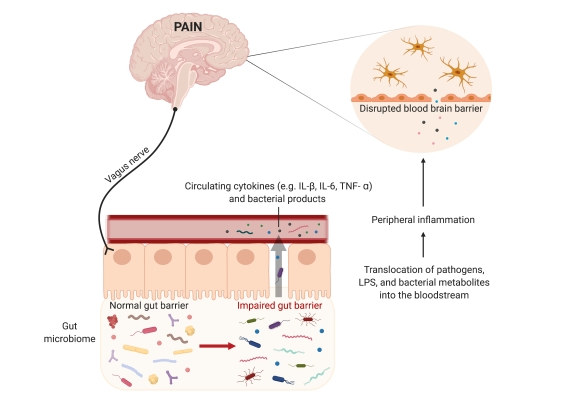 Microglia-Microbiome Review Figure 2
